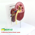KIDNEY03(12432) Oversize Medical Anatomy Diseased Kidney Anatomy Model,1 Part, Cutaway, Anatomy Models > Urinary Models