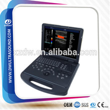 prix echographie doppler couleur& ultrasound color doppler scanner DW-C60