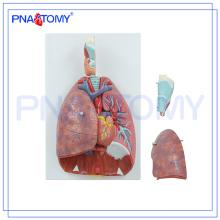 PNT-0430 Modelo de cavidad nasal, oral, faringe y la laringe, modelo de sistema respiratorio humano