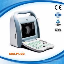 MSLPU22 Scanner d'ultrasons A / B ophtalmique portable numérique complet en Chine