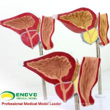 VENDRE le modèle humain pathologique de prostate de 12427 pour l'éducation, modèle d'examen de prostate de BPH