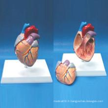 Modèle anatomique de coeur humain d'enseignement supérieur de haute qualité (R120106)