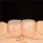 Dental All Ceramic CC Fener