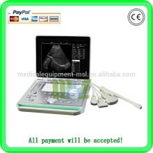 Billig heißer Verkauf Notebook Ultraschall mit rektaler Sonde MSLPU24A