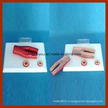 Атеросклероз с поперечной сечением модели артерии (2 части)