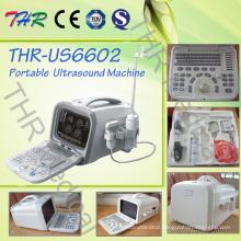 Ultrasonic Machine (THR-US6602)