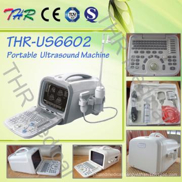 Portable Digital Ultrasound (THR-US6602)