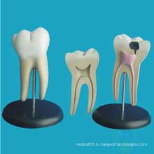 Человеческая патологическая молярная зубы Анатомическая модель обучения (R080103)