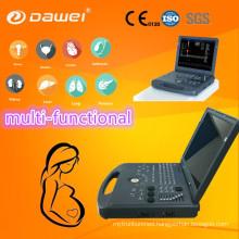 DW-C60 color doppler ultrasound system, color doppler ultrasound oem