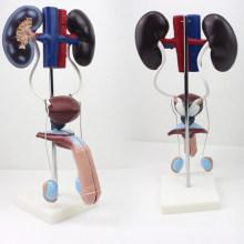 VENDA 12423 Sistema Urogenital Masculino, Modelo de Sistema Urinário Permanente, Modelos de Anatomia> Modelos Urinários> Masculino