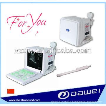 échographe médical de prix pour le coeur, l'urologie, l'épiderme, la poitrine, etc.