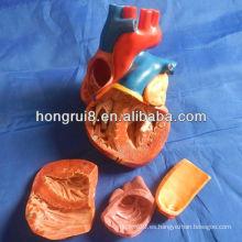 Nuevo modelo de corazón para adultos de estilo ISO