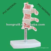 Типичные поражения модели позвоночника ------- Вырез остеопороза