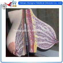 Modelo Anatómico de Mama ISO para la Visualización de la Glándula Mamaria en la Lactancia