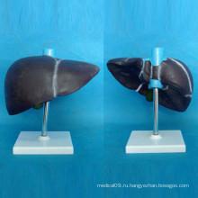 Анатомическая модель печени человека с базой для медицинского обучения (R100102)