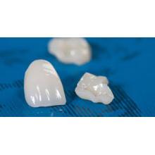 Dental IPS E. Max All Ceramic Restoration Tooth