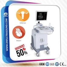 DW370 escáner de ultrasonido humano trolly bien diseñado para la venta