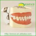 EN-L1 Removable Dental Soft Gingival Teeth Model for Phantom Head
