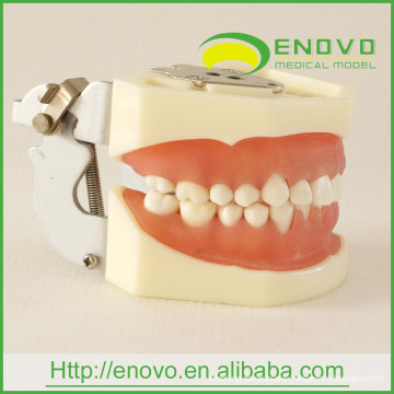 Modèle de dents gingivales dentaires démontables d'EN-L1 pour la tête de fantôme