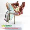 VERKAUF 12456 Pathologisches Modell der männlichen Urogenitalsystem Anatomie
