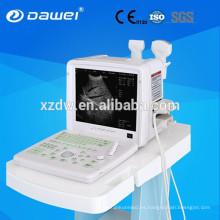 máquina de diagnóstico ultrasónico y máquina de diagnóstico por ultrasonidos 12 pulgadas Monitor LCD + 96 sonda de fondo DW360