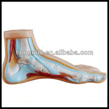 ISO Normal, Flat and Arched Foot Model, Anatomical Model