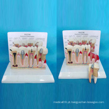 Dente Patológico Anatomia Modelo de Cuidados Odontológicos para Ensinar (R080119)