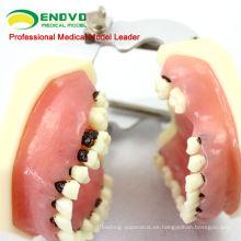 Modelo de enfermedades periodontales adultas f / Tratamiento de enfermedades periodontales 12610