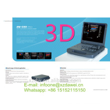 portable ultrasound machine&color doppler&portable 3d ultrasound machine DW-C60