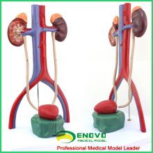 UROLOGY05 (12425) Medizinisches Humanes Harnsystem Modell für schulmedizinische Ausbildung