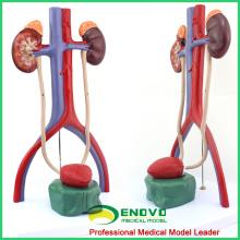 UROLOGY05 (12425) Modèle de système urinaire humain de science médicale pour l'éducation médicale scolaire