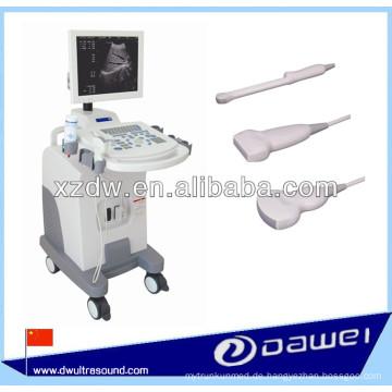 Volldigitaler Trolley-Ultraschallscanner und Ultraschallgerät
