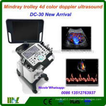 DC-30 Latest Mindray trolley CW function 4d color doppler ultrasound machine/4d ultrasound scanner