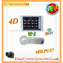 MSLPU37M 2016 High Tech 4D Wireless Blasenscanner Protable Blasenscanner Ultraschall Maschine Preis