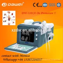 Máquina ultrasónica más barata de la exploración del ultrasonido 2D y equipo ultrasounic del veterinario profesional