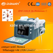 2D cheapest bovine ultrasound scan machine&professional vet ultrasounic equipment