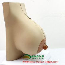 SELL 12460 Lactating Breast Section Anatomical Model 2 Parts Anatomy
