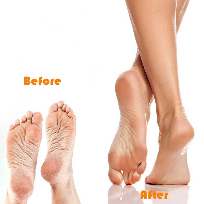 Foot Scrubber Brush
