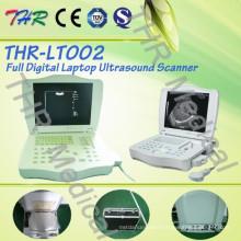 Thr-Lt002 Full Digital Ultrasound Scanner