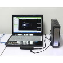 equipamento oftálmico AB scanner