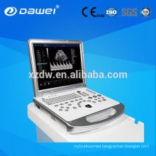 "15"" CE approved Digital Ultrasound Machine /scanner Portable Color Doppler with 3D / 4D"