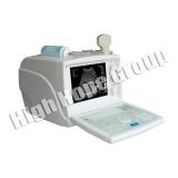 Digital Portable Ultrasound Scanner