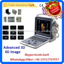 Weihnachtsförderung !! MSLCU28i 4d Farbe Doppler tragbaren Ultraschall Maschine Preis