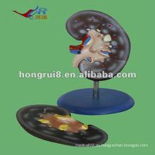 ISO 2012 Modelo de Anatomía del Riñón Humano (2 partes), modelo de función de anatomía HR-310-2