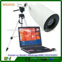 MSLEC01i Colposcopio digital de la nueva tecnología / colposcopio video de la vagina