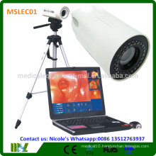 MSLEC01i New Tech Medical portable digital video Electronic gynecology Colposcope