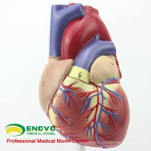 HEART03 (12479) Modèle de l'anatomie du cœur humain adulte pleine grandeur, 2 parties, modèles d'anatomie> Modèles de coeur