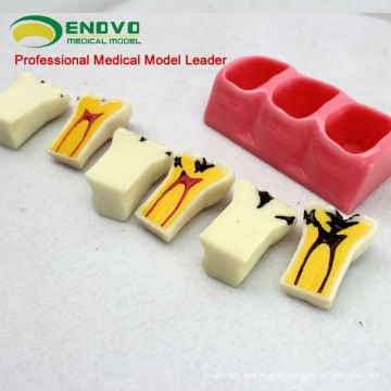 TOOTH02 (12575) Modelo de descomposición de caries dental con caries o modelos de estudio de caries en 6 partes
