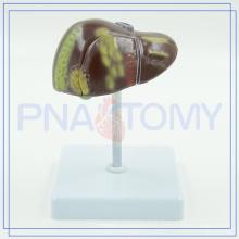 PNT-0752 Pathologie der Leber zu verkaufen