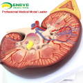 KIDNEY02(12431) Oversize Plastic Kidney with Stand 3 Time Enlarge Life Size Medical Anatomy